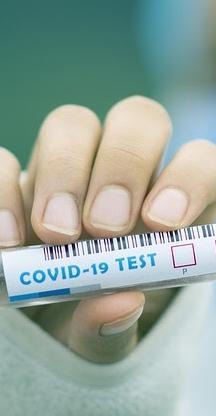 covid-19-esting